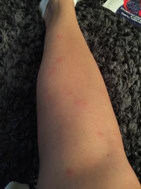 I guess bugs love...and I need bug spray.